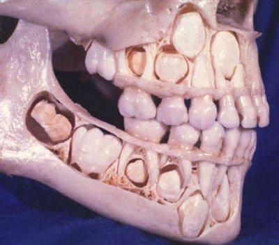 Bebek (çocukluk) dişlerini kaybetmeden önceki insa