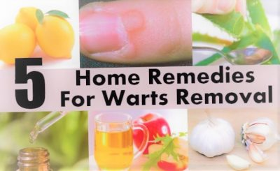 Home Remedies for Removing Warts Warts are ugly l